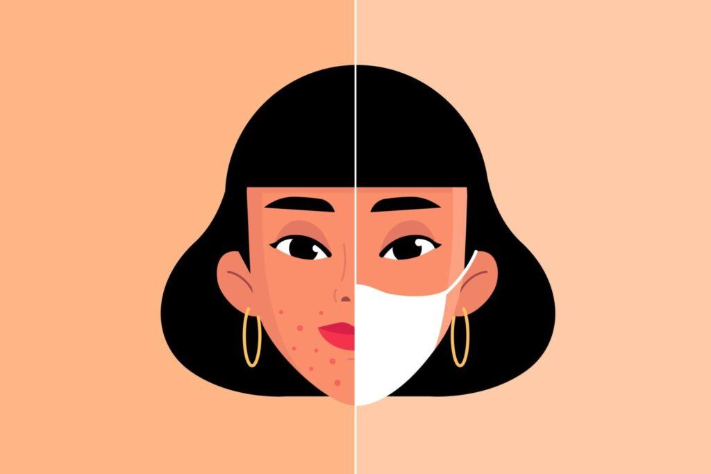 maskne illustration
